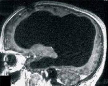 زندگی نرمال بدون 90 درصد از مغز!