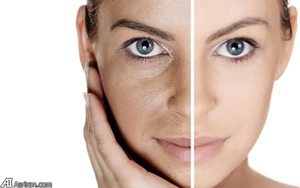 توصیه تغذیهای برای پوست شما!
