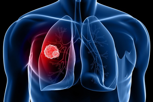 6 عادت هوشمندانه برای پیشگیری از سرطان ریه
