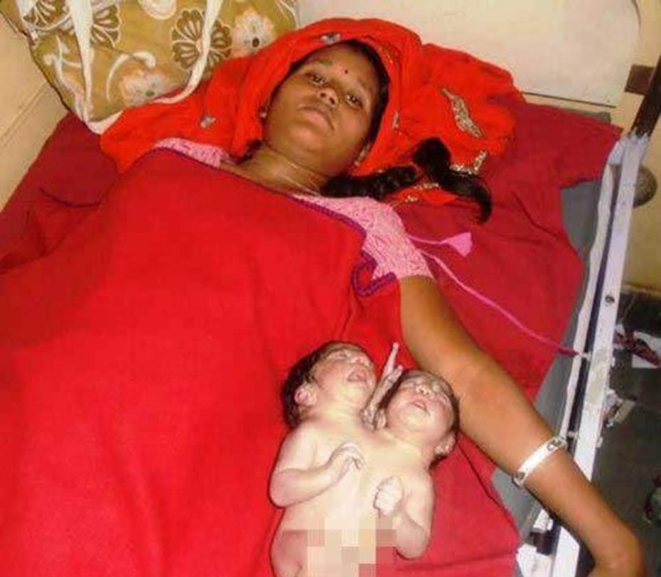 تولد پسر 2 سر در هند (+عکس)