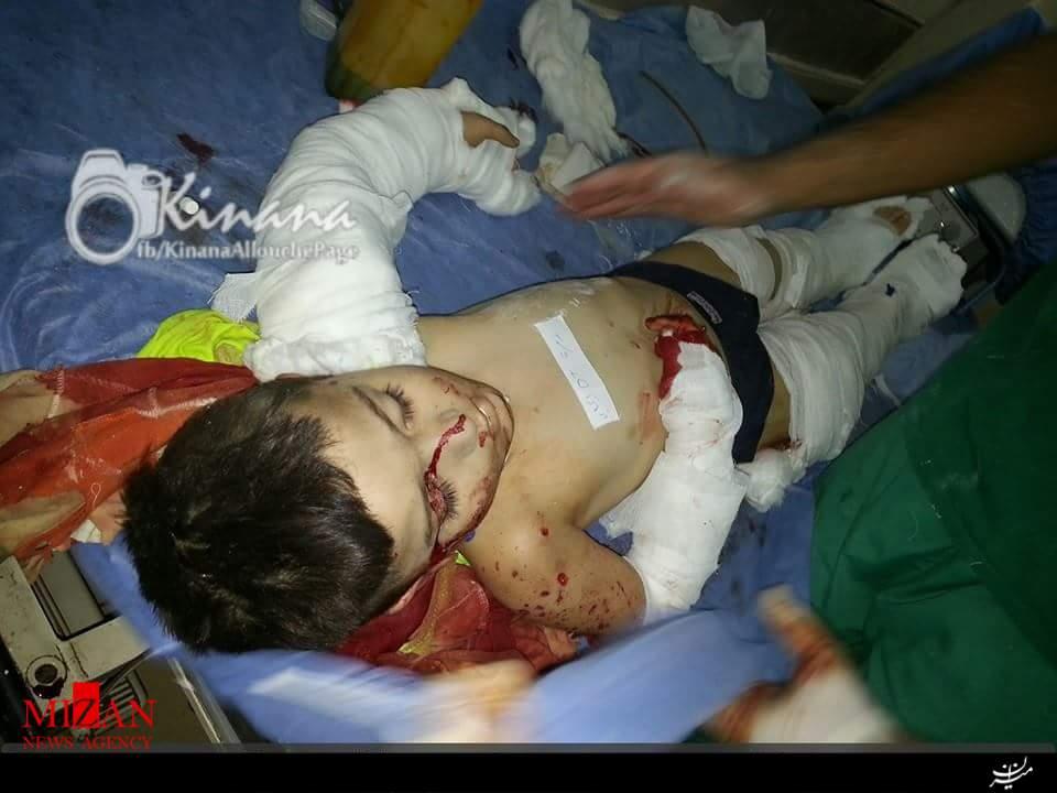 حمله خمپارهای تروریستها به دانشآموزان حلب (+عکس)