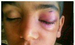 استعفای رییس آموزش و پرورش بعد از تنبیه بدنی دانش آموز (+عکس)