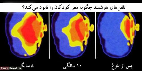 تبلت با مغز کودک شما چه میکند؟ (+عکس)