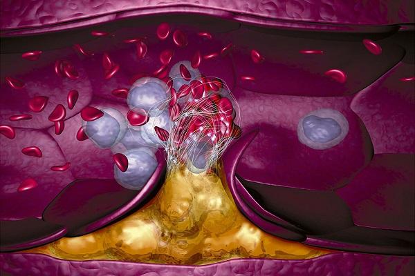 آیا کلسترول بالا می تواند موجب لخته خون شود؟
