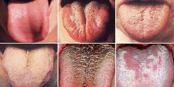 رنگ زبان نشانه ای  از سلامت شما!