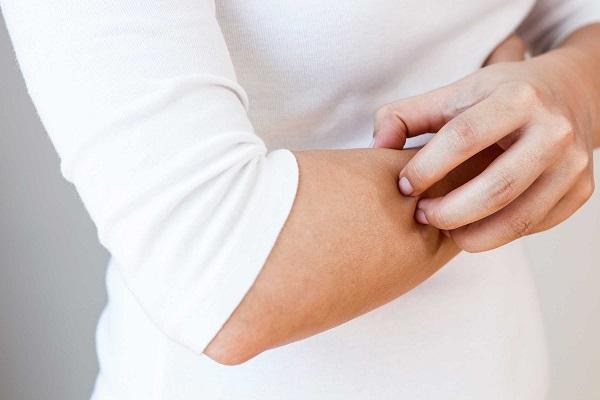ترفندهایی برای مقابله با خشکی پوست در فصول سرد