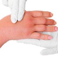 روش های طبیعی درمان ورم بدن