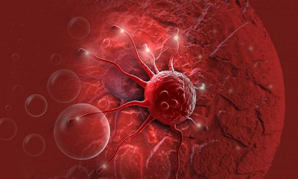 نشانههای هشدار دهنده سرطان پستان