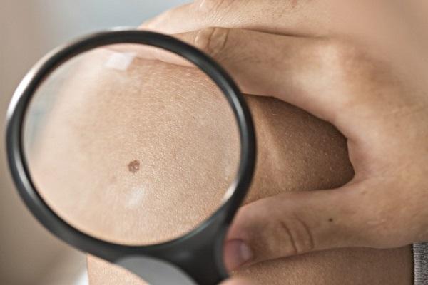 10 نشانه که از سرطانی بودن خال حکایت دارند