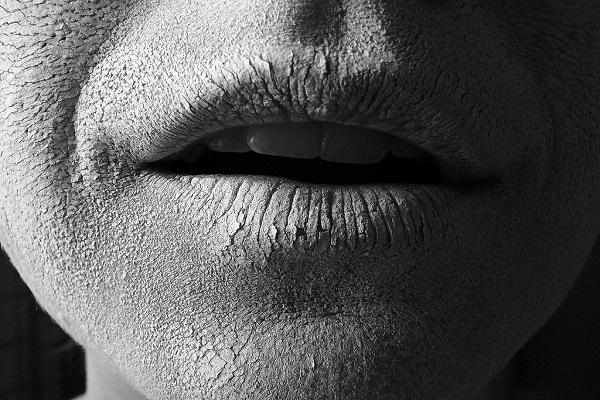 درمانهایی موثر برای خشکی دهان