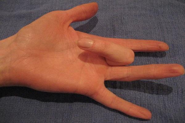 درمانهایی ساده برای انگشت ماشهای