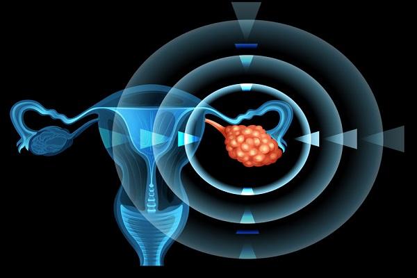 نشانههای هشدار دهنده کیست تخمدان