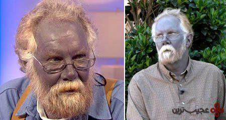 مردی با پوست آبی رنگ (عکس)