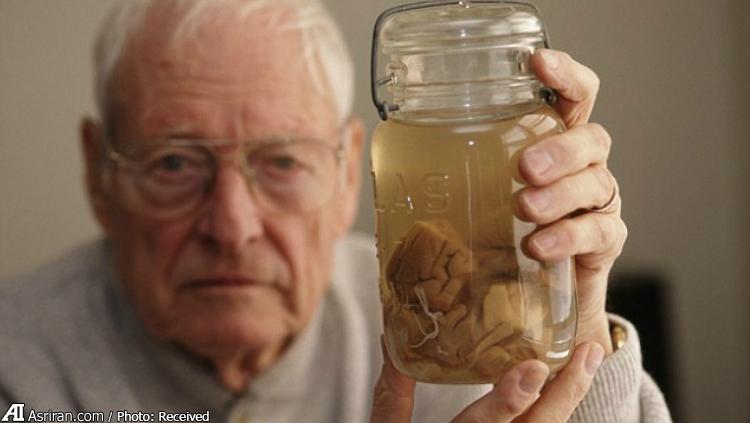 مغز اینشتین داخل بطری شیشه ای! (عکس)