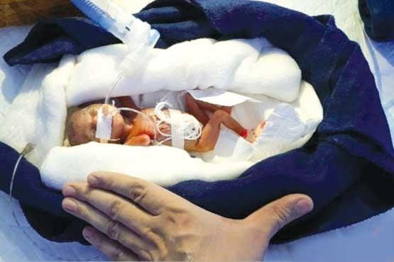 کم وزنترین نوزاد جهان (+عکس)