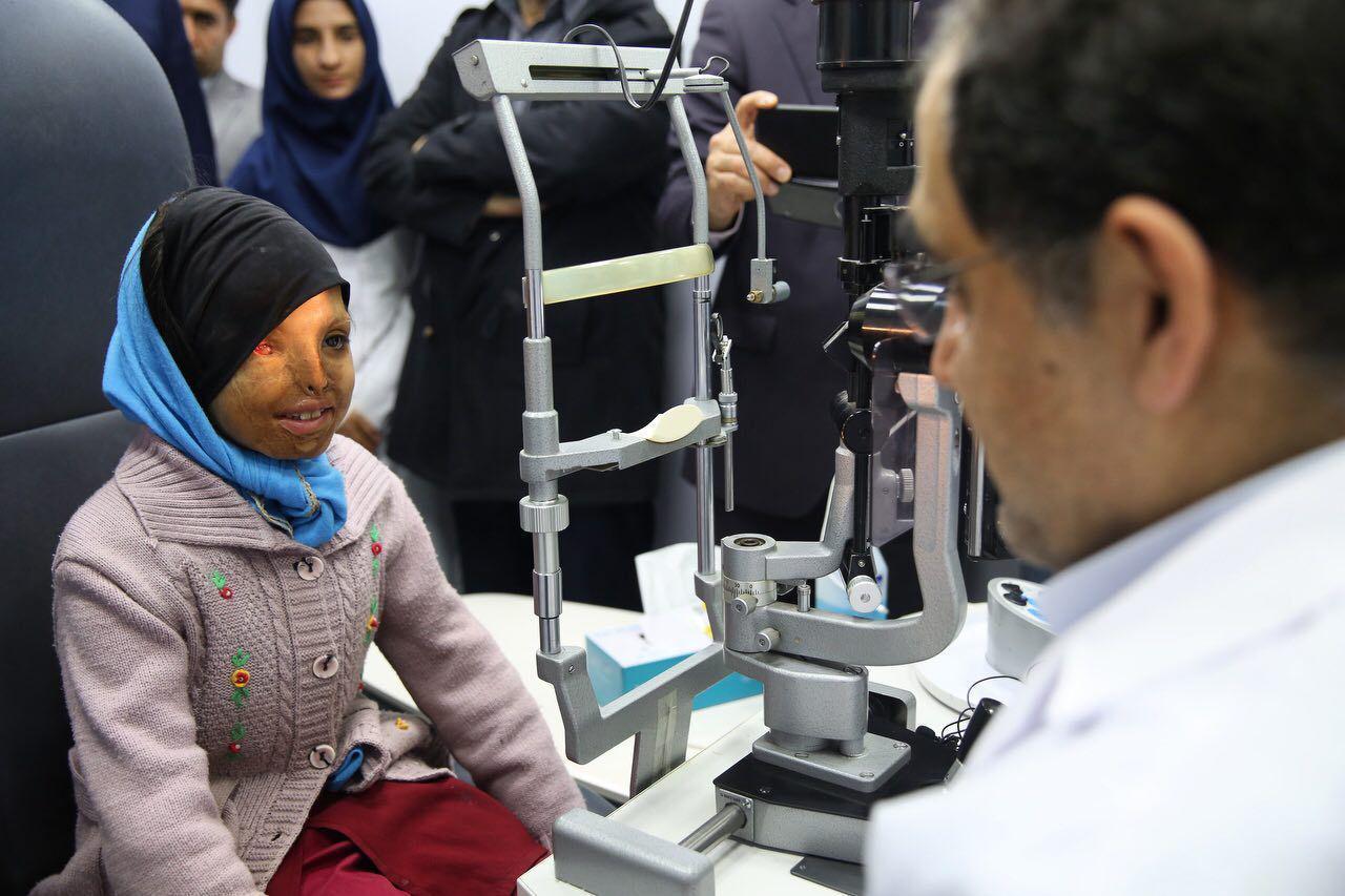 وزیر بهداشت، دختر قربانی اسیدپاشی را معاینه کرد (+عکس)