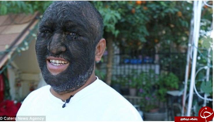 «مرد گرگی» که ۹۸ درصد بدنش را مو پوشانده است (+عکس)