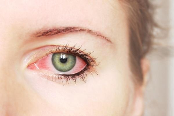 آنچه ترشحات چشم درباره سلامت شما فاش میکنند