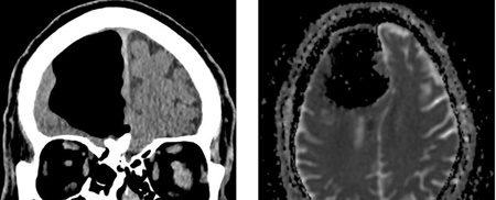 مردی که بخشی از مغزش ناپدید شد (+عکس)