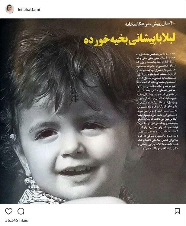 لیلا حاتمی، ۴۰ سال پیش با پیشانی بخیه خورده (عکس)
