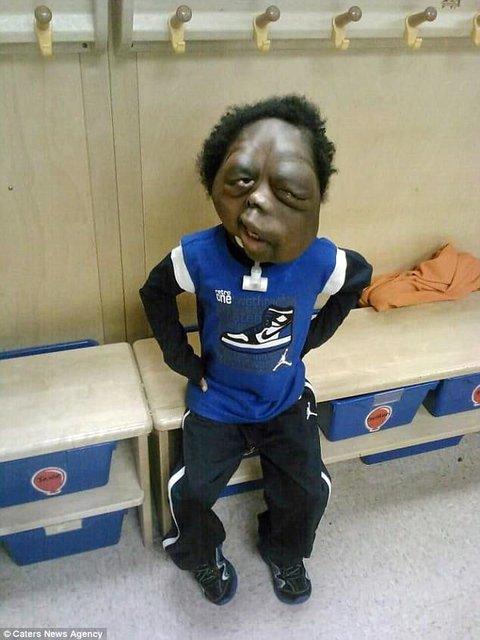 تغییر چهره پسربچه آمریکایی به دلیل ابتلا به اختلال ژنتیکی (+عکس)