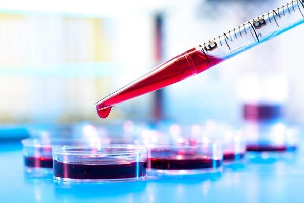 مشکلات سلامت که با آزمایش خون آشکار میشوند