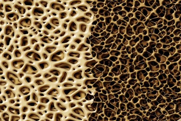 8 بیماری خطرناک که در خفا گسترش مییابند