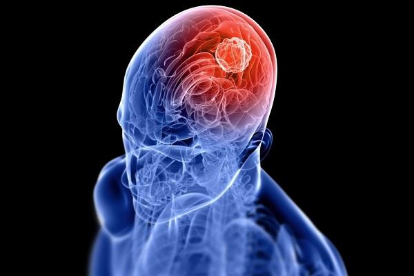 حقایقی که باید درباره تومورهای مغزی بدانید