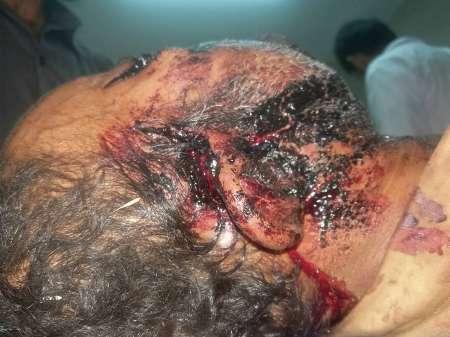 حمله پلنگ به دامدار هرمزگانی (+عکس)