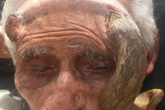 شاخی که موجب مرگ پیرمرد 140 ساله شد! (+عکس)