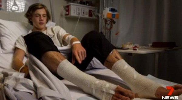 حمله موجودات ریز دریایی به پاهای نوجوان استرالیایی! (+عکس)