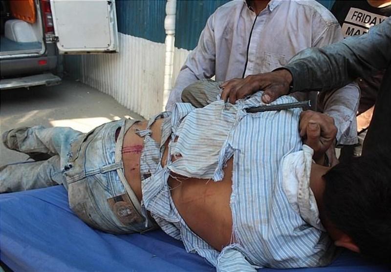 فرو رفتن میلگرد 2متری در بدن کارگر افغان (+عکس)