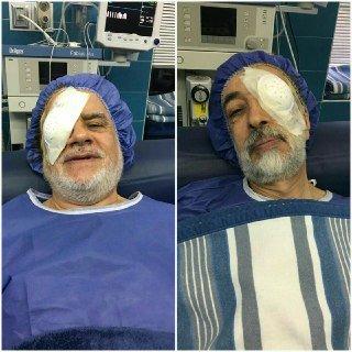 عمل چشم 2 چهره سیاسی توسط وزیر بهداشت (+عکس)