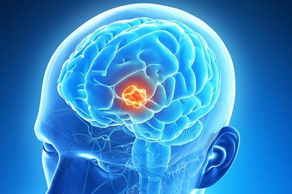 این 8 نشانه احتمالی تومور مغزی را نادیده نگیرید