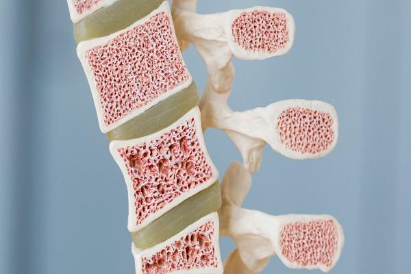 9 نشانه هشداردهنده سرطان مغز استخوان