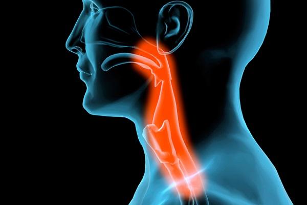 8 دلیل ابتلا به سرطان سر و گردن