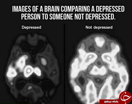 مغز در حالت افسردگی (+عکس)