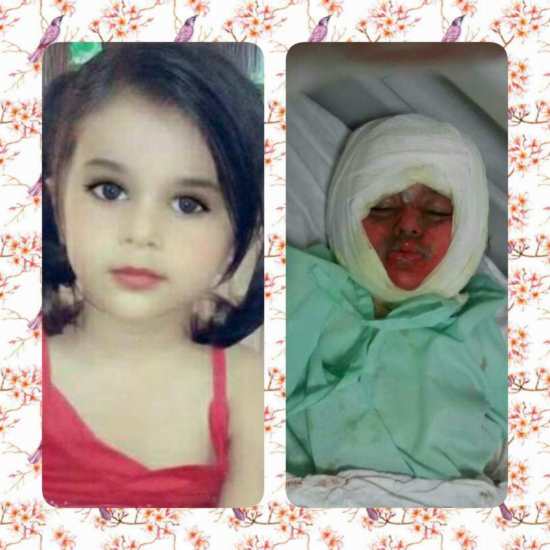 سقوط دختربچه در دیگ نذری در آبادان/ سوختگی 95 درصدی (+عکس)