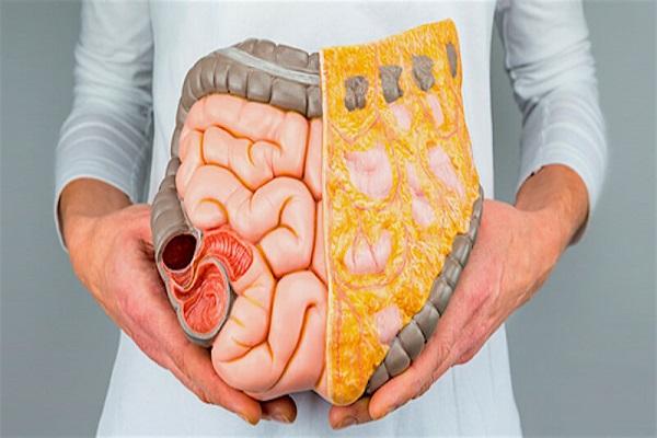 چگونگی درمان آکنه ناشی از یبوست