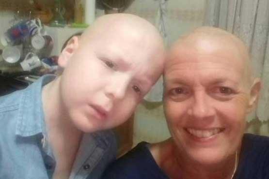 مادر و پسری که همزمان به سرطان مبتلا شدند (+عکس)