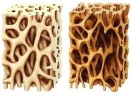 علائم مخفی پوکی استخوان چیست؟