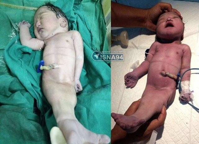 تولد کودکی در هند به شکل پری دریایی (عکس)