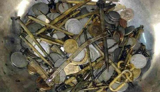 خارج کردن اشیاء آهنی از معده بیمار هندی (+عکس)