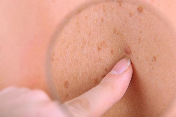 از دلایل شگفت انگیز ابتلا به سرطان پوست