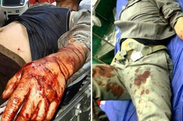 مصدومیت شدید ۲ محیطبان در صومعه سرا (+عکس)/ ضاربان دستگیر شدند