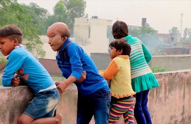 تغییر چهره جوان عجیبالخلقه هندی برای یافتن همسر (+عکس)