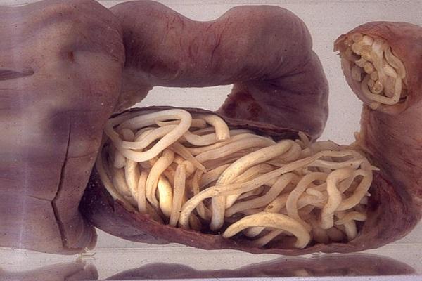 دانستنیهای درباره کرمهای روده