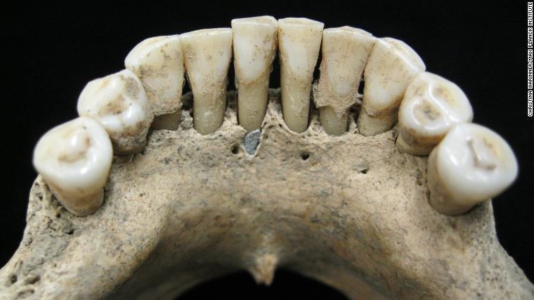 کشف سنگ لاجورد قیمتی در دهان زن هزارساله آلمانی (+عکس)