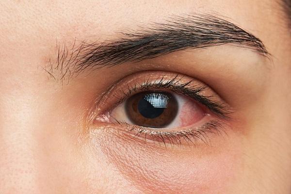 آیا علائم چشم شما جدی هستند؟