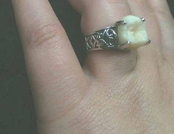 حلقه ازدواج با دندان (عکس)